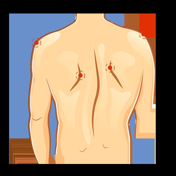 חגורת גב לטיפול בבעיות עקמת בגב
